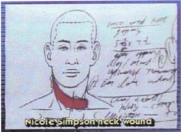 Nicole Brown Simpson decapitating slash wound 001