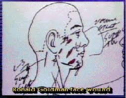 Ron Goldman photo face stab wounds