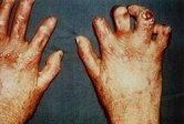 Porphyria Congenital Erythropeietic Porphyria CEP