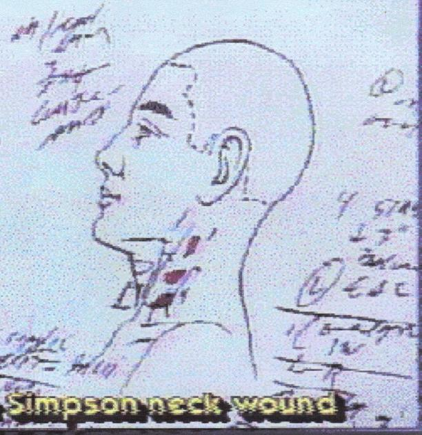 Nicole Brown Simpson stab wounds in Left side neck 001